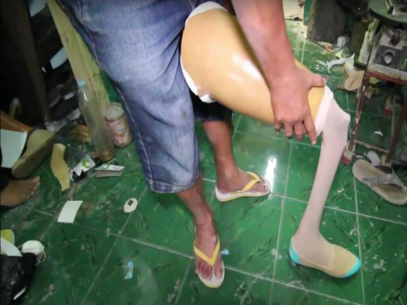 produksi-kaki-palsu-berkualitas-dari-tangerang